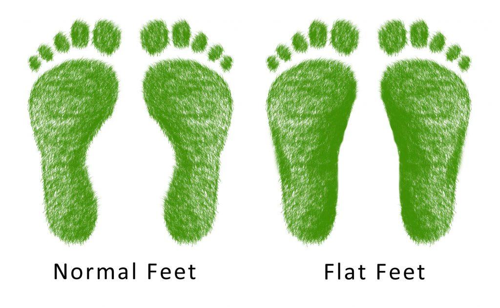 normal feet vs flat feet